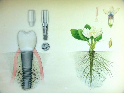 Все болезни от зубов
